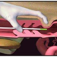 Tesis de la UNCPBA sobre la administración de 0,5 mg o 1 mg de CPE en el momento de retirar un dispositivo intravaginal con progesterona.